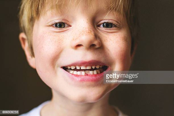 Close-up portrait of a boy with missing tooth