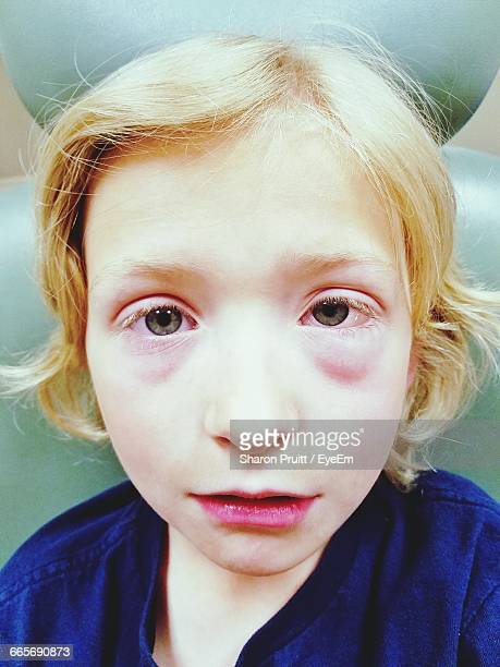 Close-Up Portrait Of Boy Suffering From Allergic Conjunctivitis