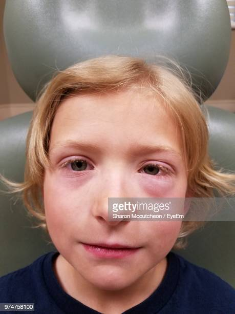 close-up portrait of boy suffering from eye allergy - swollen stock photos and pictures