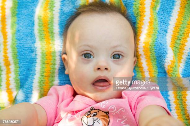 Close-Up Portrait Of Cute Baby With Down Syndrome