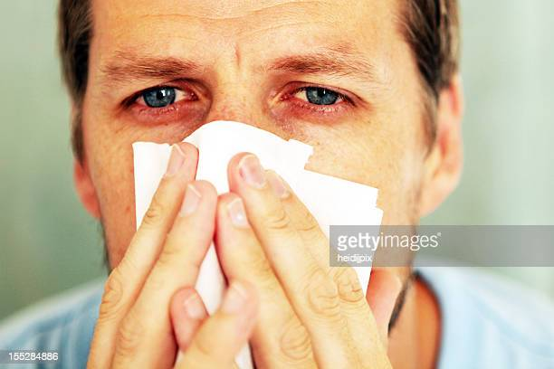 Closeup portrait of red eyed man holding tissue to his nose