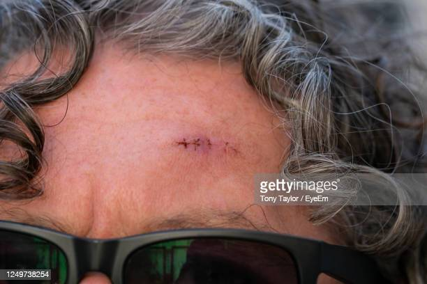 close-up portrait of woman - basal cell carcinoma stock pictures, royalty-free photos & images