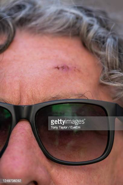 close-up portrait of woman wearing sunglasses - basal cell carcinoma stock pictures, royalty-free photos & images