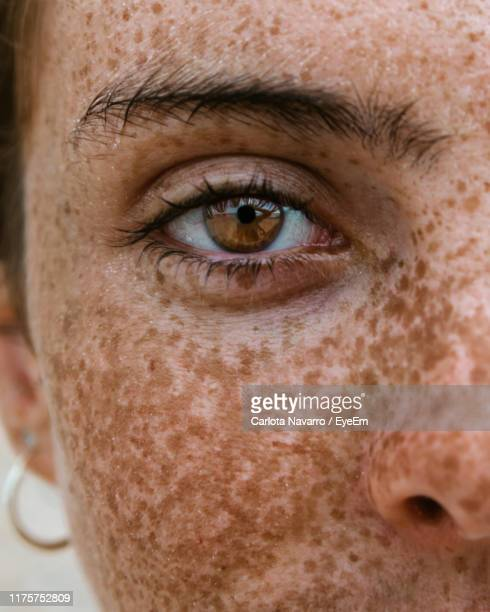 close-up portrait of woman with freckles - nahaufnahme stock-fotos und bilder
