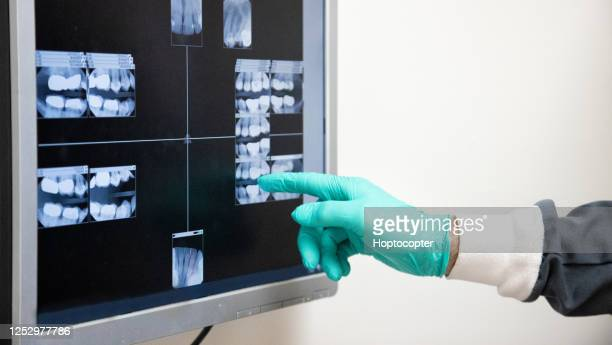 close-up shot of a dentist wearing surgical gloves pointing to an x-ray of teeth on a computer screen in a dental clinic - dental filling stock pictures, royalty-free photos & images