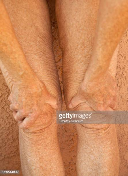 Close-up view of an older woman's legs with hands grasping her knees
