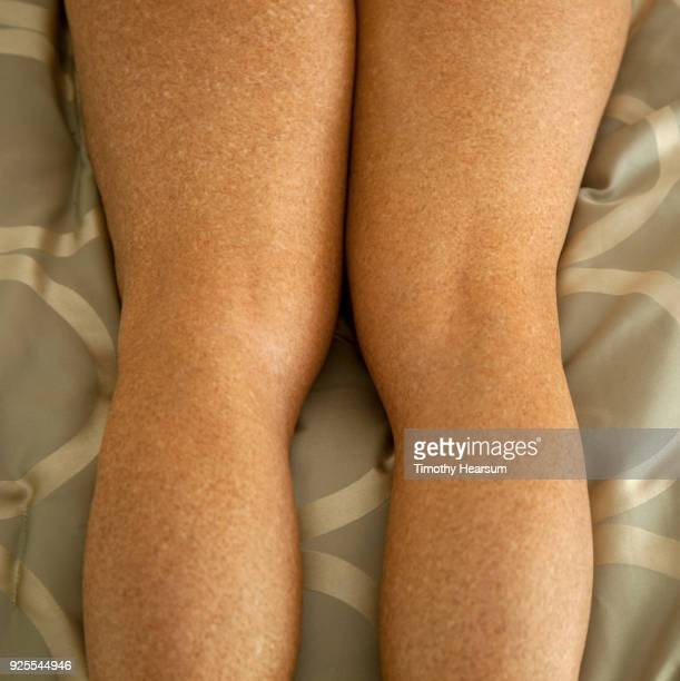 Close-up view of the backs of a woman's thighs, knees and calves against a comforter