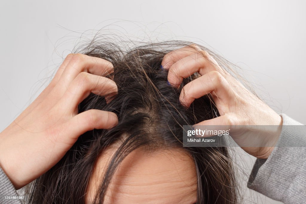 Closeup woman hand itchy scalp, Hair care concept : Stock Photo