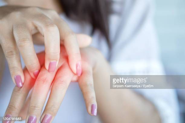 closeup woman having itchy and scratching hand, healthcare and medical concept - eczema stock pictures, royalty-free photos & images