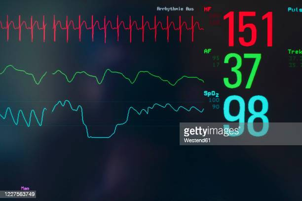close-upof ekg screen display - oscilloscope stock pictures, royalty-free photos & images