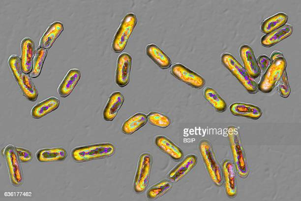 Clostridium difficile seen under optical microscopy