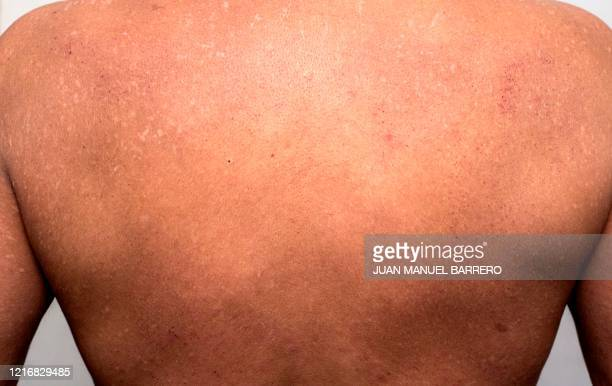A cocaine consumer shows the consequences of the drug on his back's skin during an interview with AFP in Bogota on January 29 2020 Narcodiseases...