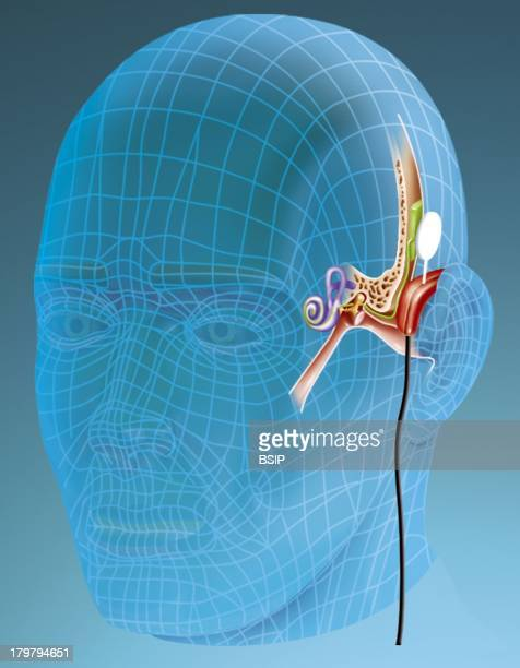 Cochleal Implant New Generation Cochlear Implant