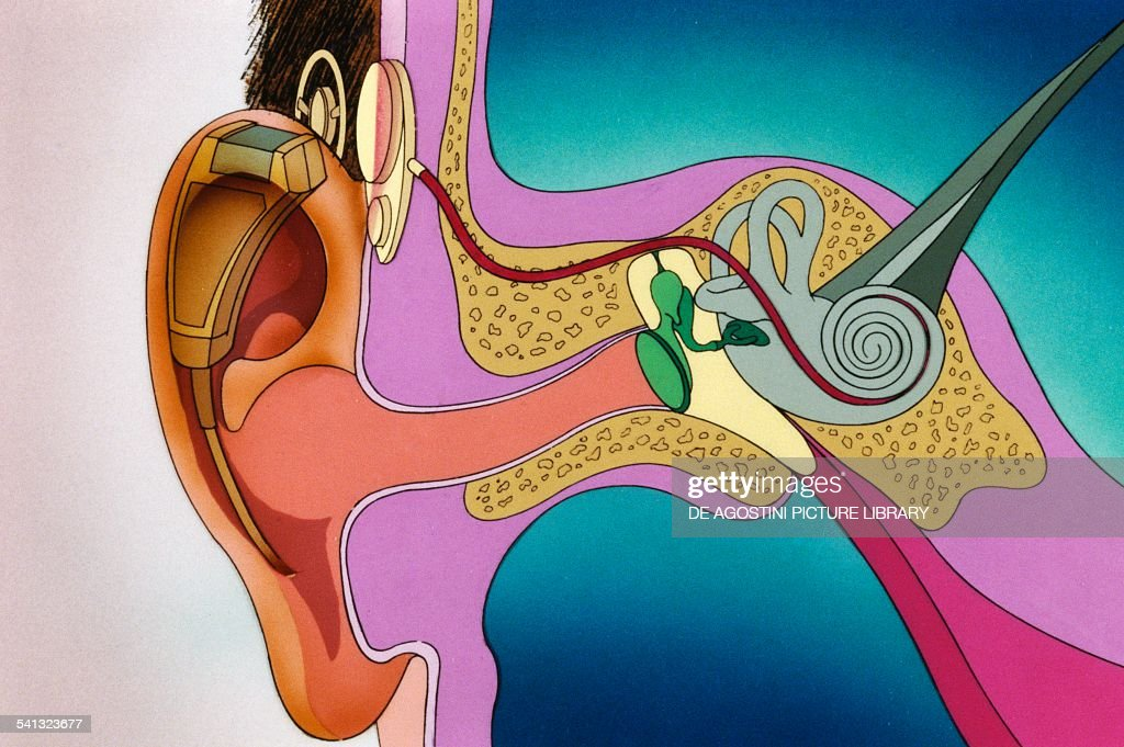 Cochlear implant... : News Photo