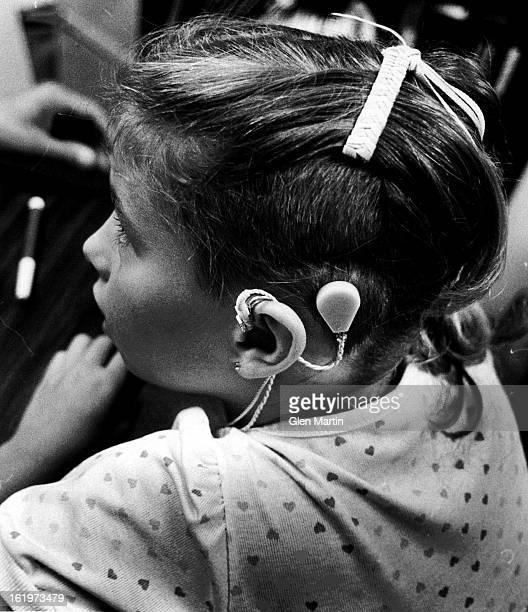 AUG 24 1984 AUG 26 1984 Cody Dusenberry Cochlear 2