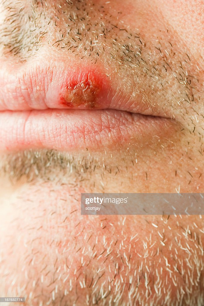 cold sore on the lip of a middle aged male. : Stock Photo