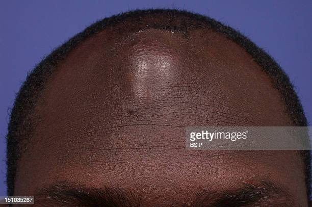 Collected Abscess On Forehead