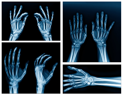 collection x-ray hand 945145740