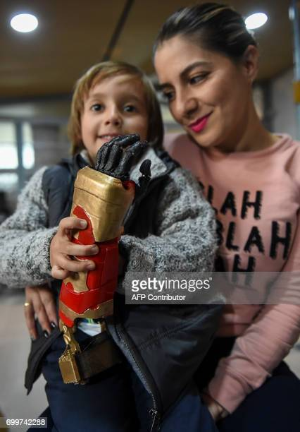 Colombian boy Daniel Garavito poses with his mother Milena Medina holding his 3d printed prosthesis with 'Iron Man' design in Bogota Colombia on June...