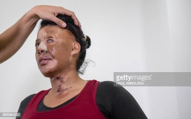 Colombian doctor Alan Gonzalez examines acid attack survivor Angeles Borda in Bogota Colombia on June 7 2017 Dr Alan Gonzalez is a Colombian plastic...