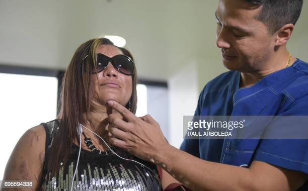 Colombian doctor Alan Gonzalez examines Silvia Julio Jimenez who survived an acid attack four years ago in Bogota Colombia on June 7 2017 Dr Alan...