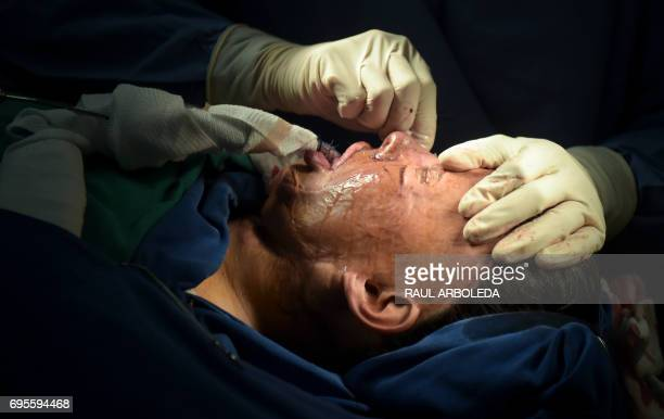 Colombian doctor Alan Gonzalez gets ready to operate on 32yearold acid attack survivor Angeles Borda in his surgery in Bogota Colombia on May 30 2017...