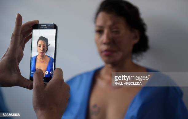 Colombian doctor Alan Gonzalez takes a picture of 32yearold Angeles Borda who survived an acid attack ten years ago in his office prior to her...