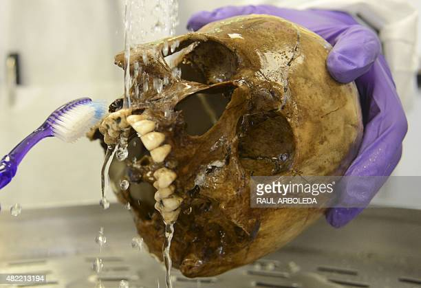 A Colombian forensic expert cleans a skull in the Center for Human Identification of the General Prosecutor's laboratory in Medellin Antioquia...