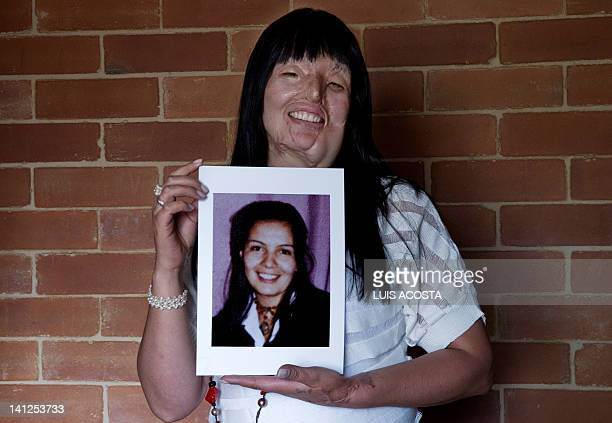 Colombian Nubia Espitia poses with an old picture of herself at her home in Bogota on March 5 2012 Espitia was burnt with acid on 2008 and attributed...