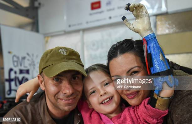 Colombian Shaio Valeria Novas poses with her parents Julia Giraldo and Alexander Novas while trying her 3D printed prosthesis with a superhero...