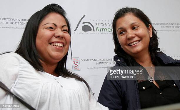Colombian sisters Jaqueline Vasquez Sanchez and Suly Janeth Sanchez, survivors of the Armero tragedy, smile during their reunion after 30 years...