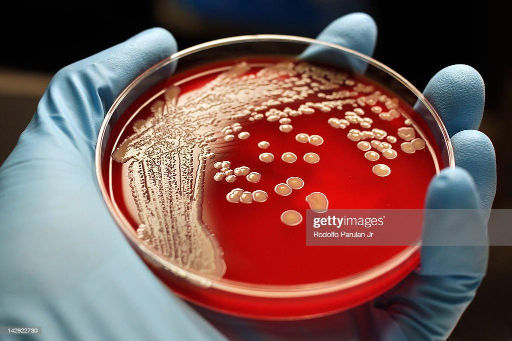 MRSA colonies on blood agar plate : Stock Photo
