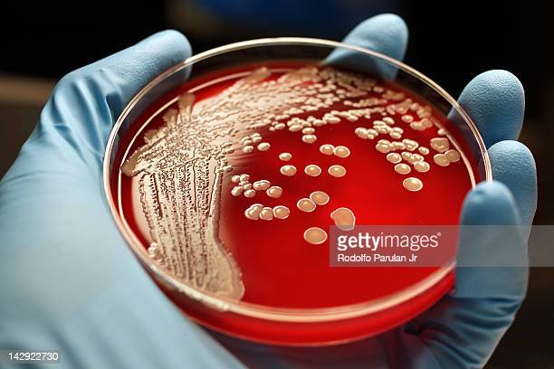mrsa colonies on blood agar plate - petrischale stock-fotos und bilder