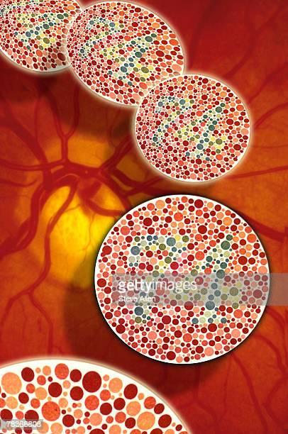 Color blindness in eye