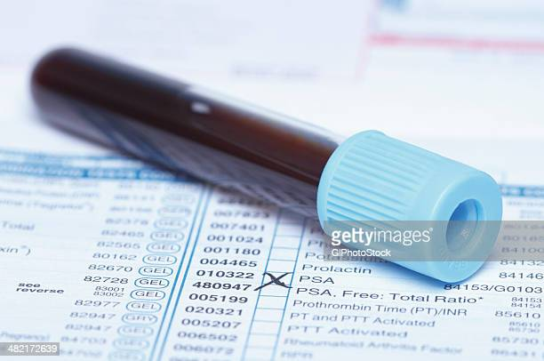 color coded tube containing synthetic blood sample on a bloodwork requisition form that lists a test for prostate-specific antigen (psa) - psa stock photos and pictures