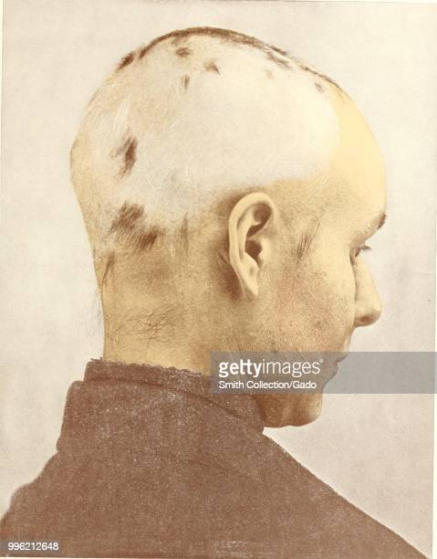 Color headshot photograph of a man suffering from spot baldness with his head turned away from the camera in order to highlight his patchy hair loss...