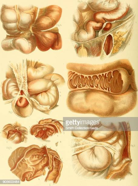 Color illustration depicting five cases of intestinal strangulation with additional closeups to show detail from the volume The Anatomy and Surgical...