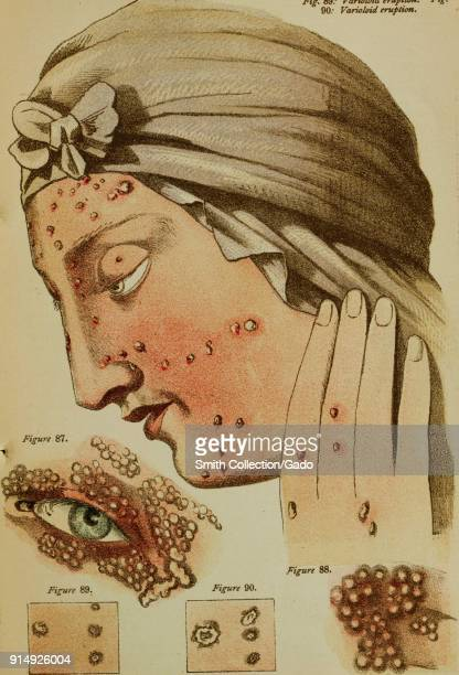 Color illustration depicting smallpox pustules, shown on the face and hand of a woman, in profile, wearing a scarf, with inset close-ups to...