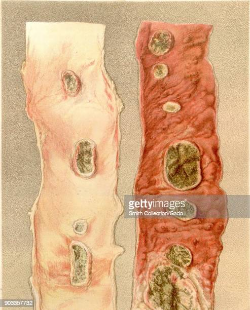 Ileum Stock Photos and Pictures | Getty Images