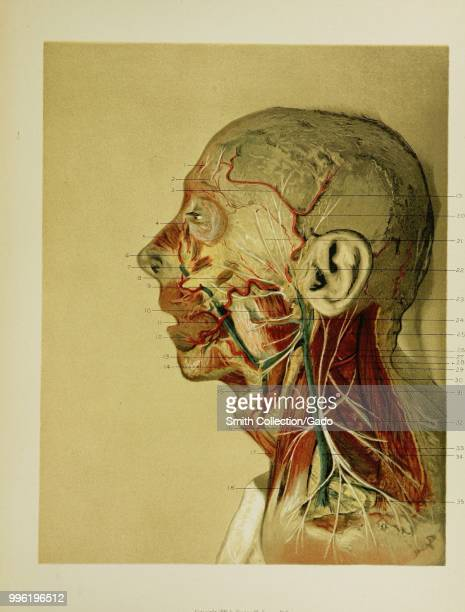 Color photograph of a partially dissected human face with the parotid gland removed from the left side in order to reveal the facial nerve branches...