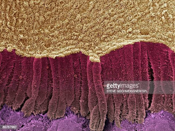 Colored scanning electron micrograph