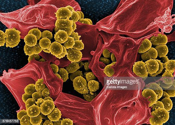Colorized SEM of methicillin-resistant Staphylococcus aureus (MRSA) bacteria in the process of being phagocytized by a human neutrophil white blood cell