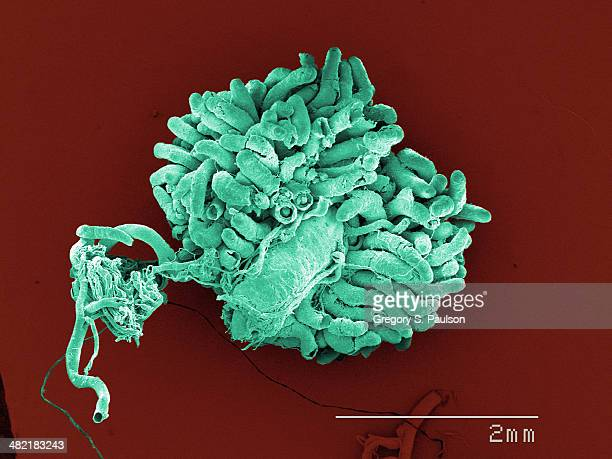 Coloured SEM of American cockroach gut and malpighian tubuoles