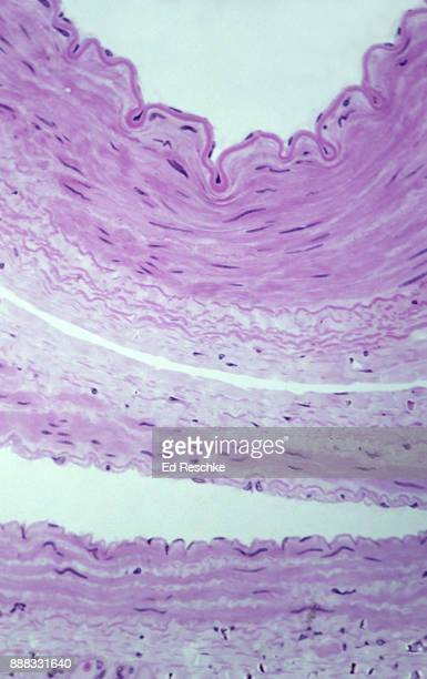 a comparison of an artery and vein showing the tunics (or layers) cross section, 50x - ed reschke photography photos et images de collection