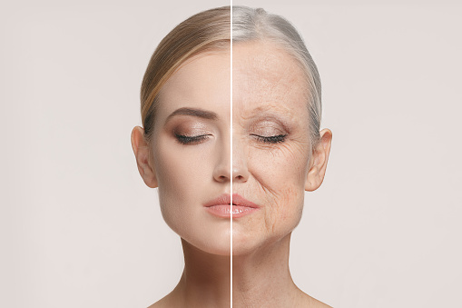 Comparison. Portrait of beautiful woman with problem and clean skin, aging and youth concept, beauty treatment 921677406