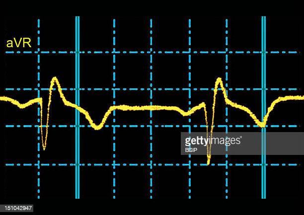 Complete Right Bundle Branch Block: Transmission Of The Electrical Impulse Is Delayed Or Fails To Conduct Along The Right Branch Of The His Bundle,...