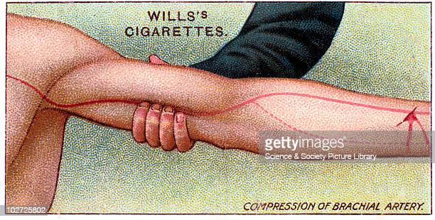 'Compression of brachial artery' Wills' cigarette card Wills' cigarette card 1913 One of a series of 50 'First Aid' cigarette cards issued by WD HO...