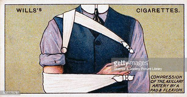 Compression of the Axillary artery by a pad and flexion' Wills' cigarette card 1913 One of a series of 50 'First Aid' cigarette cards issued by WD HO...