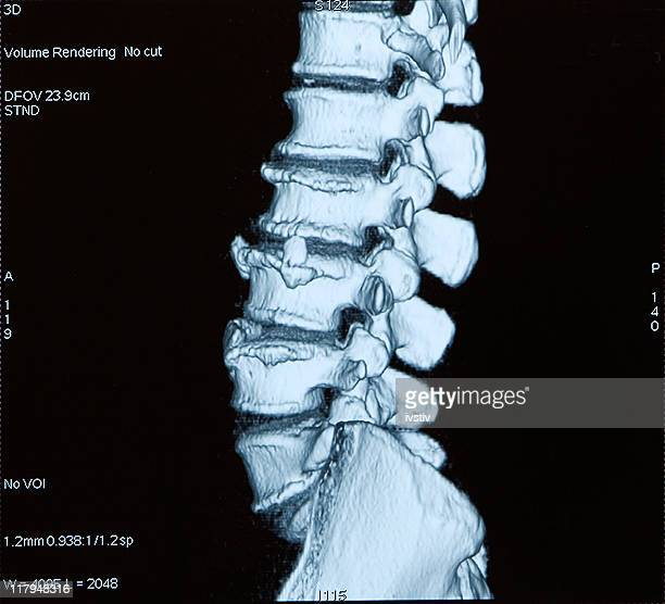 Tomography informatisé