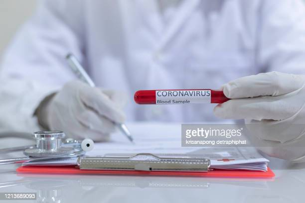 concept to represent the 2020 virus threat coronavirus, blood in a test tube. - scientific experiment stock pictures, royalty-free photos & images